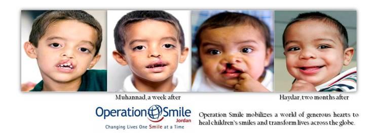 operation smile jordan
